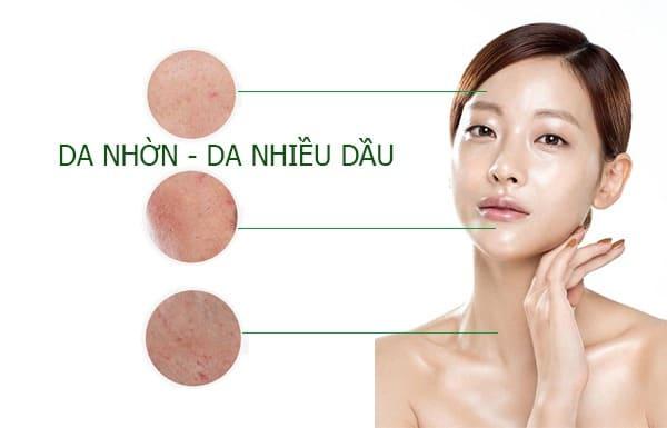 Da dầu là gì? Cách chăm sóc da dầu tránh khỏi mụn